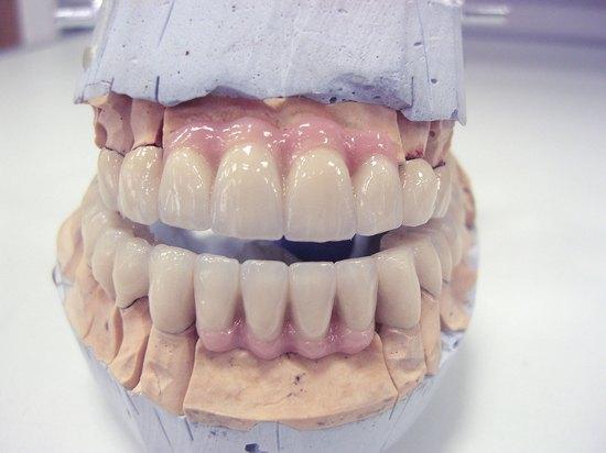 Протезирование зубов металлкерамикой