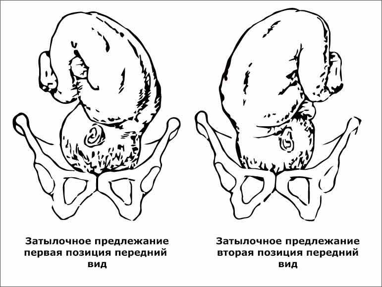 Затылочное предлежание при биомеханизме родов